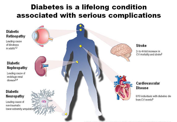Best Ayurvedic Treatment for Diabetic Complications ...   697 x 480 png 262kB