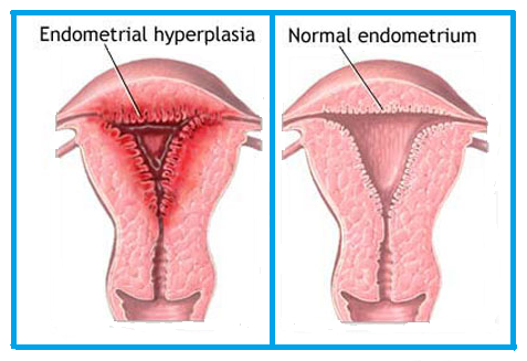 Cure Endometrial Hyperplasia Naturally