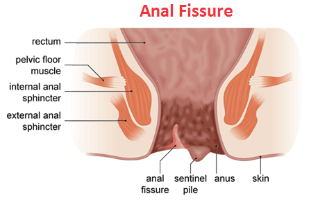 Anal fissure pain
