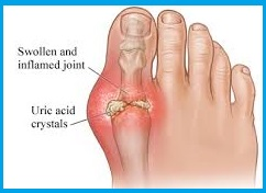 Best Ayurvedic Treatment for Gout | AyurVAID Hospitals