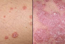 psoriasis-Diabetes Mellitus-Hypertension